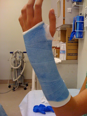 blue cast broken arm