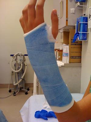 blue cast broken arm